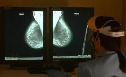Exames de mamografias aumentam mais de 100% durante o Outubro Rosa